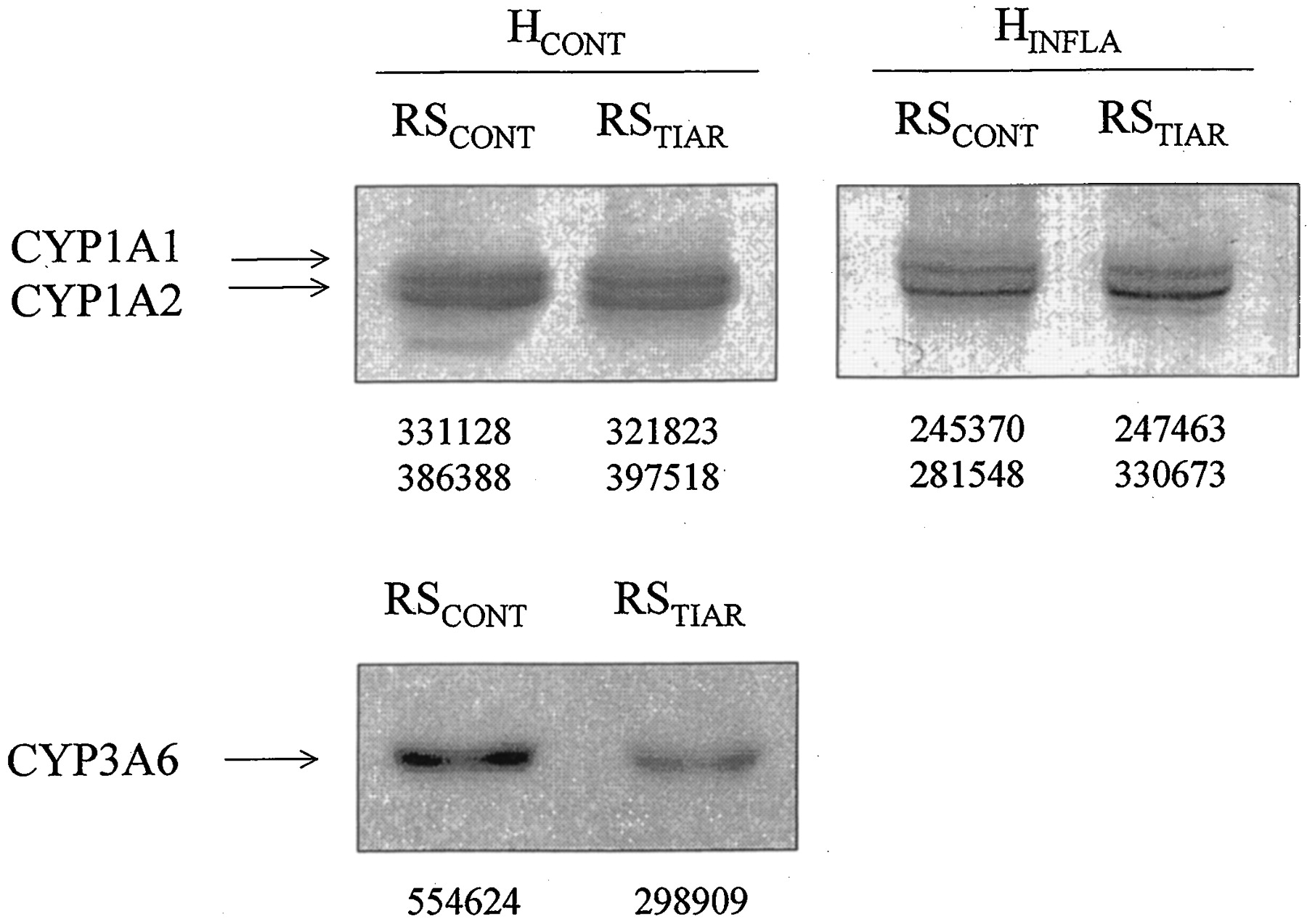 Cytochrome P450 Down-Regulation by Serum from Humans with a